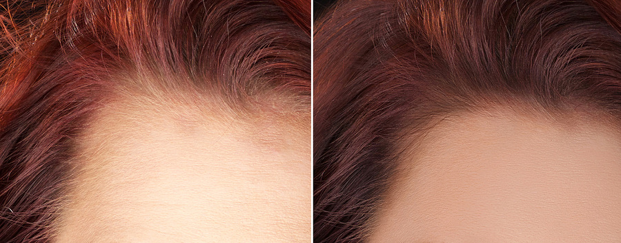 Forehead hairs / Post processing by Sharp Retoucher / Uploaded 20th April 2016 @ 05:26 AM